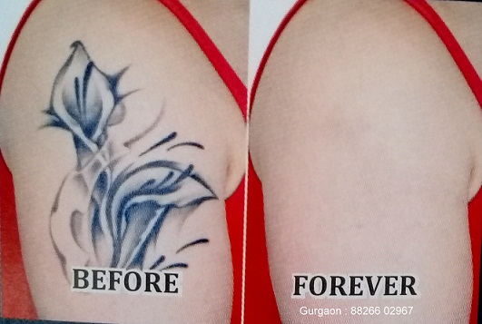 tattoo removal in gurgaon, laser tatoo removal in gurgaon